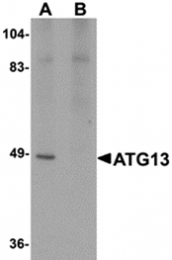 AP26240CP-N - ATG13