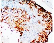 AP23344PU-N - Cyclooxygenase 2