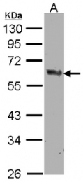 AP31134PU-N - Cyclooxygenase 1