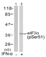 AP02522PU-S - EIF2A / EIF2S1