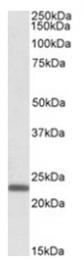 AP16048PU-N - Claudin-14 (CLDN14)