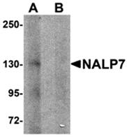 AP26264CP-N - NLRP7