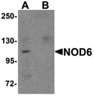 AP26260CP-N - NALP9 / NOD6