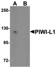 AP26292CP-N - PIWIL1