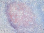 AM26049PU-N - CD19