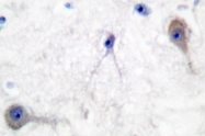 AP06278PU-N - PTCH1