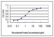 AM31029PU-N - S100A6 / Calcyclin