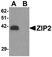 AP26307CP-N - Zinc transporter ZIP2 / SLC39A2