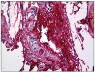 AM31060PU-N - Fibrinogen gamma chain