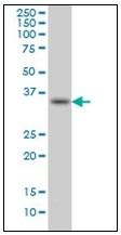 AM31089PU-N - Sprouty homolog 1 / SPRY1