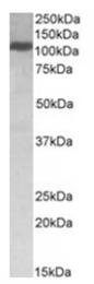 AP16037PU-N - KIF5B
