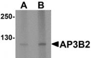 AP26159CP-N - AP3 complex subunit beta-2 / AP3B2
