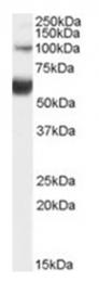 AP17055PU-N - HNF1 beta / TCF2