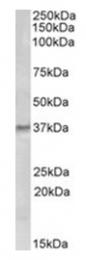 AP16806PU-N - GTP cyclohydrolase 1 (GCH1)