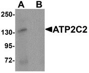 AP26125CP-N - ATP2C2