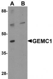 AP26154PU-N - GEMC1