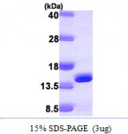 AR09851PU-L - DNAJC19 / TIM14