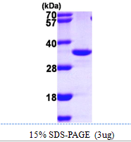 AR09853PU-L - Inositol monophosphatase 2 / IMPA2