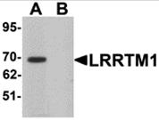 AP26094CP-N - LRRTM1