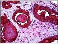 AM31369PU-N - Kallikrein-3 / PSA / KLK3