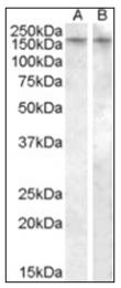 AP16979PU-N - Vasopressin V1b receptor (V1bR)