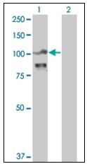 AM31143PU-N - Alpha-actinin-4 / ACTN4