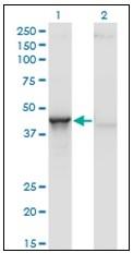 AM31144PU-N - Aminoacylase-1 / ACY1