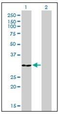 AM31146PU-N - Annexin A5 / ANXA5
