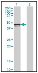 AM31148PU-N - Calreticulin