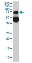 AM31167PU-N - Tripeptidyl-peptidase 1 (TPP1)