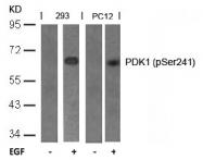 AP02307PU-S - PDPK1