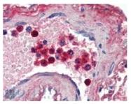 AP16844PU-N - Lactotransferrin
