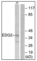 AP31365PU-N - EDG2 / LPAR1