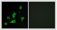 AP31358PU-N - Retinol-binding protein 5 / RBP5