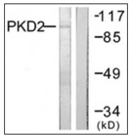 AP31327PU-N - PRKD2 / PKD2