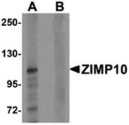 AP26131CP-N - ZMIZ1 / RAI17