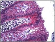 AP31188PU-N - Junction plakoglobin