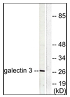 AP31344PU-N - Galectin-3