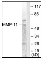 AP31345PU-N - MMP-11