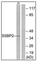 AP31349PU-N - SSBP2