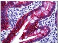 AP31354PU-N - Cytokeratin 20