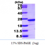 AR09878PU-L - Transgelin-2 (TAGLN2)