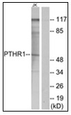 AP31230PU-N - PTH Receptor 1
