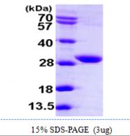 AR09888PU-L - KDS reductase