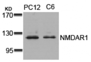 AP08051PU-N - NMDA Receptor 1