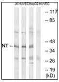 AP31263PU-N - Neurotrimin