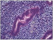 AP31264PU-N - CD225 / IFITM1