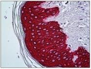 AP31271PU-N - Cytokeratin 5