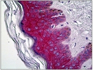 AP31273PU-N - Junction plakoglobin