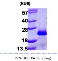 AR09918PU-L - PDCD6